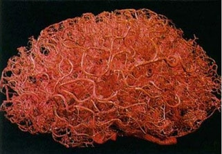 frankenstein - 3d printed vasculature blood vessels