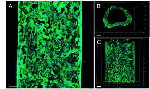HUVEC vascular channel vein 3d bioprinted bioprint allevi NJIT guvendiren