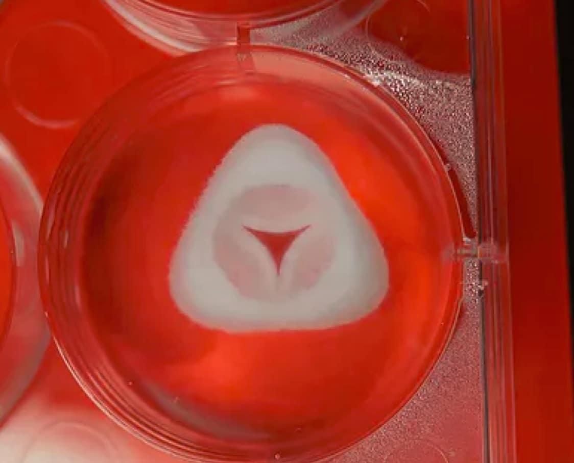 allevi advanced biomatrix collagen aortic pulmonary heart valve bioprint 3d bioprinted