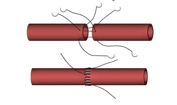 suturing blood vessels